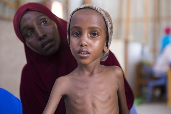 concern-somalia-yasmiin-1180x787.jpg