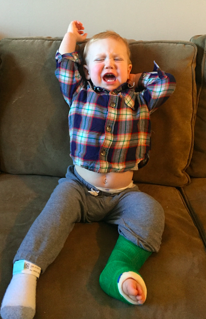 Toddler with leg cast