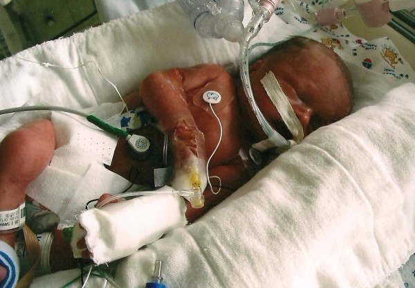Hayden (Baby A)