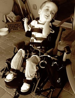 Austin in his wheelchair and hip brace looking cute.