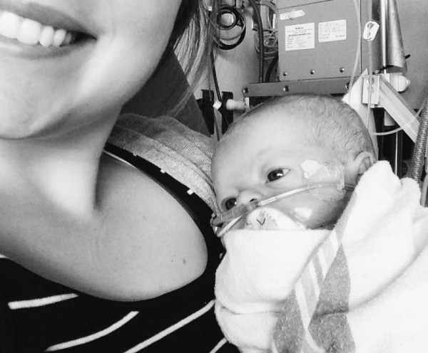 Choosing To Love A Child You Could Lose {Love In Spite of Diagnosis}