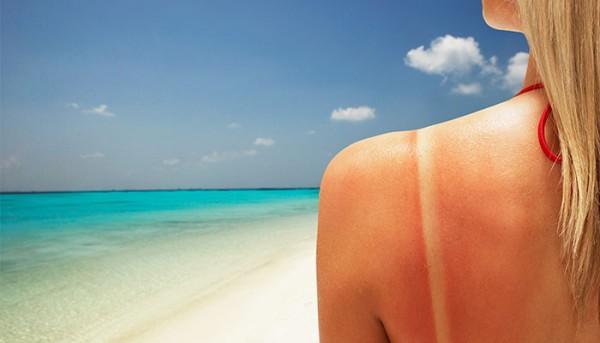 10 Summertime Struggles Only Pale Girls Understand